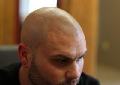 scalp-micro-pigmentation-bangkok